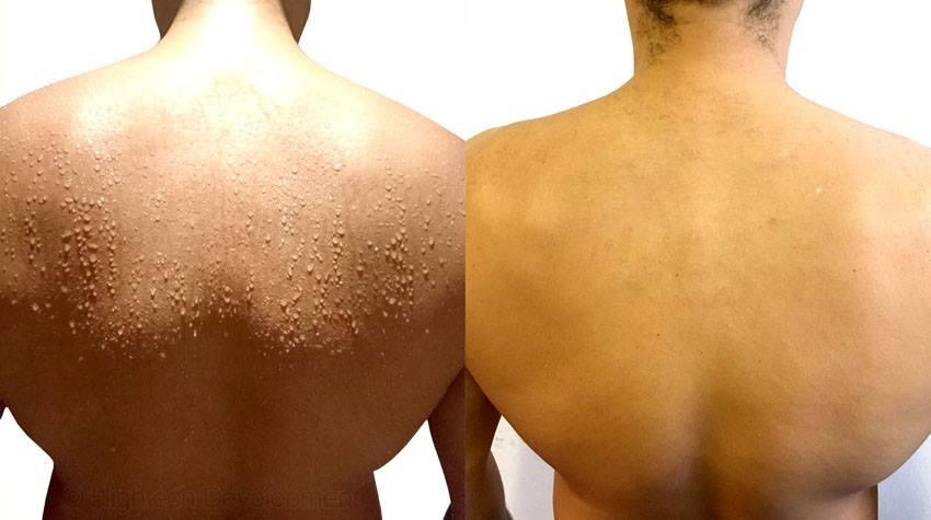 Hình ảnh bệnh nhân trước và sau khi dùng phương pháp điện di ion điều trị mồ hôi ra ở vùng lưng