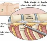 Tìm hiểu về phương pháp cắt mổ hạch giao cảm chữa ra mồ hôi- ETS