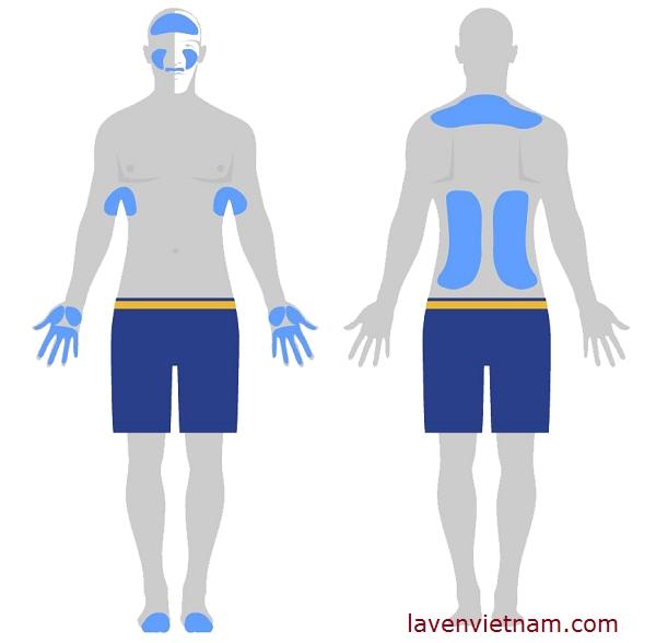 Tăng tiết mồ hôi thường diễn ra chủ yếu ở các vùng cụ thể trên cơ thể (gọi là tăng tiết mồ hôi khu trú)