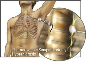 Hình ảnh phẫu thuật lồng ngực cắt hạch giao cảm
