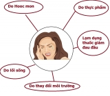 5 nguyên nhân chính gây ra bệnh đau đầu, đau nửa đầu