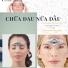 Phương pháp chữa đau nửa đầu Migraine của Châu Âu