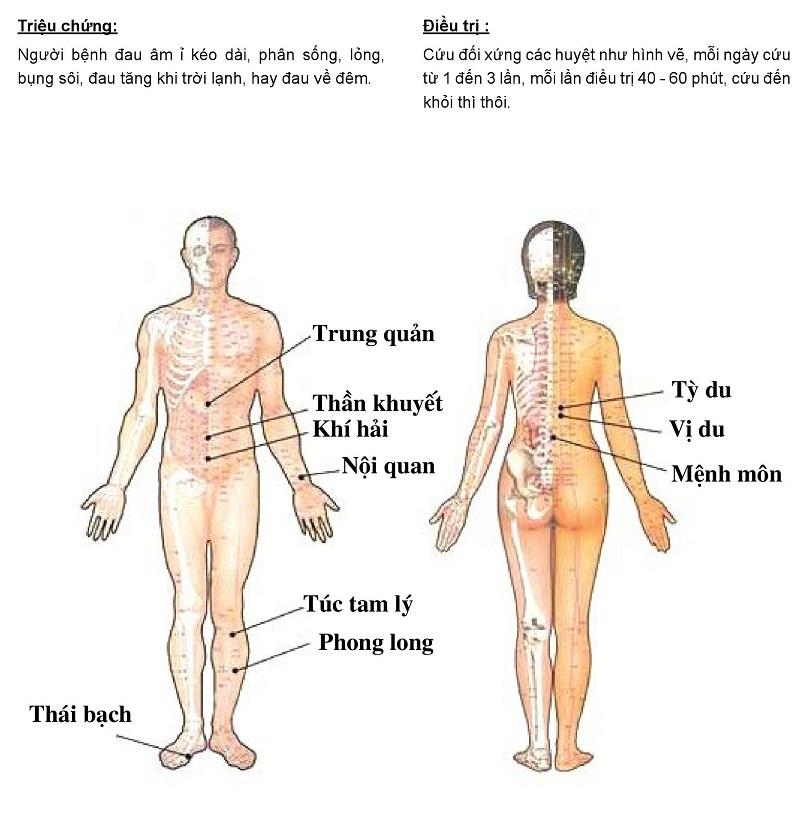 Hướng dẫn cứu ngải chữa đau dạ dày