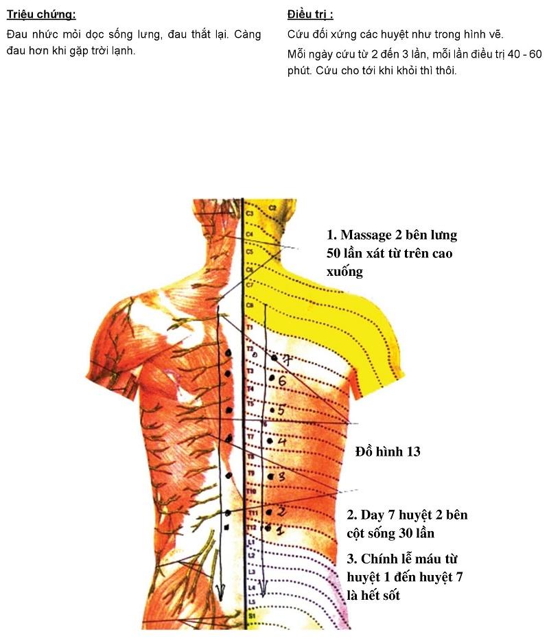 Hướng dẫn cứu ngải chữa đau lưng, đau cột sống bằng Máy cứu ngải