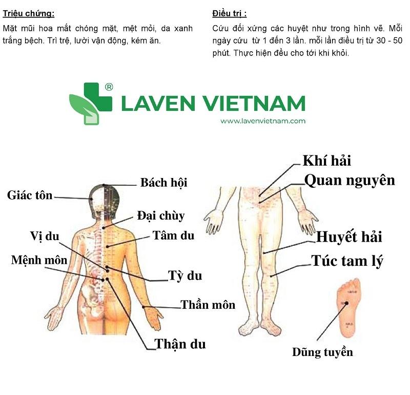 Hướng dẫn cứu ngải chữa bệnh huyết áp thấp