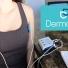 Hướng dẫn điều trị ra mồ hôi nách bằng Dermadry
