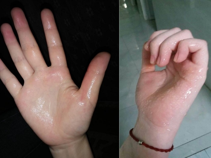 Ra mồ hôi tay chân mang tính di truyền khá cao khi người nhà có người bị bệnh tăng tiết mồ hôi này