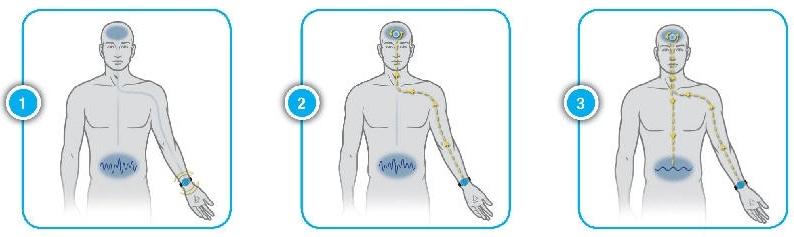 Nguyên lý hoạt động của Vòng đeo tay Reliefband chống say tàu xe ốm nghén tiền đình