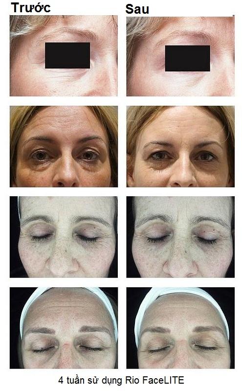 Hiệu quả trước và sau 4 tuần sử dụng Mặt nạ Rio FaceLite