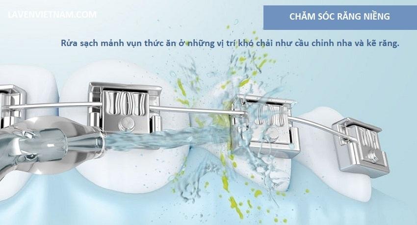 Sử dụng máy tăm nước là một lựa chọn thông minh cho những ai niềng răng, bọc mão hoặc cấy ghép răng thay thế cho dùng chỉ nha khoa