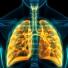 Công nghệ tế bào gốc trong điều trị ung thư phổi