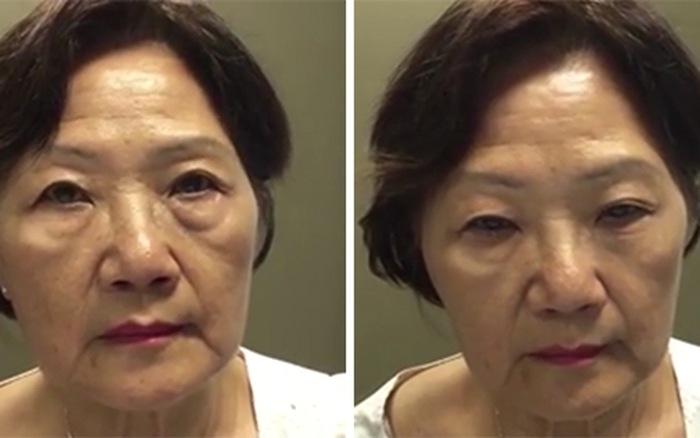 Hình ảnh hiệu quả của kem trị bọng mắt đối với mắt phải của người đàn ông và 2 mắt của người phụ nữ sau 2 phút bôi