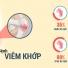 Phương pháp cứu ngải chữa đau xương khớp