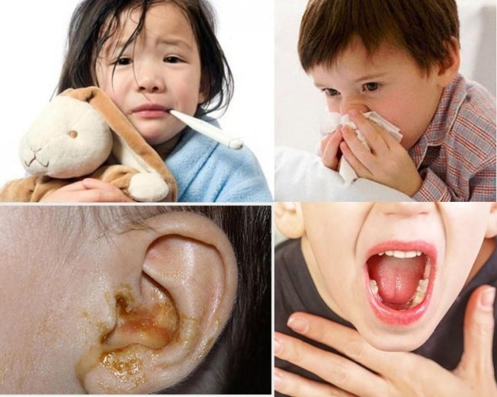 Bệnh viêm đường hô hấp gây khó chịu cho trẻ nhỏ và khiến trẻ biếng ăn, khó ngủ