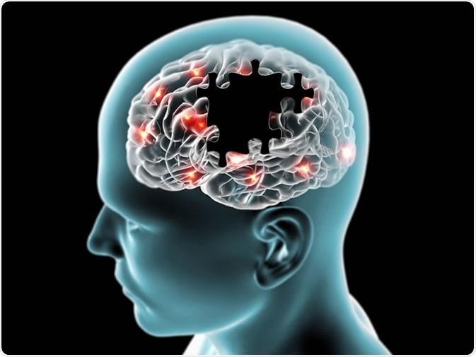Bệnh về hệ thần kinh gây ảnh hưởng nhiều đến cuộc sống của người bệnh