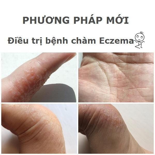 Điều trị bệnh chàm Eczema bằng điện di ion qua nước máy