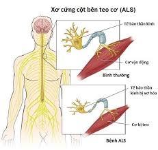 Bệnh xơ cứng teo cơ bên (ALS), bệnh thần kinh vận động (MND)