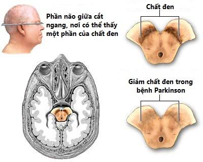 Cho đến hiện nay bệnh parkinson vẫn chưa có thuốc điều trị hay phương pháp chữa dứt điểm