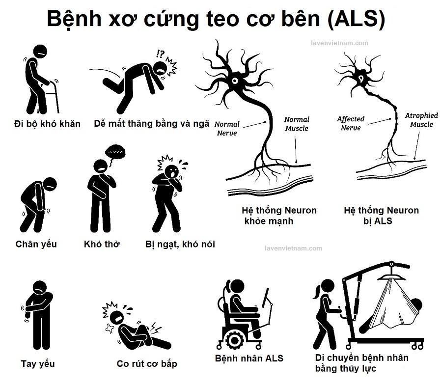 Biểu hiện củaBệnh xơ cứng teo cơ bên (ALS)