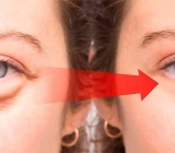 Cách làm giảm bọng mắt và quầng thâm mí mắt hiệu quả