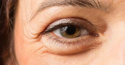 10 mẹo giúp làm tan bọng mắt