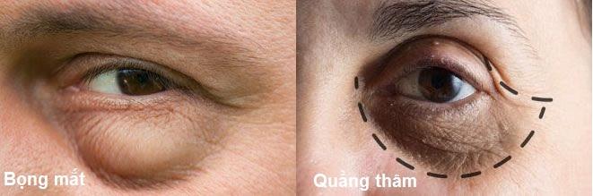Bọng mắt và quầng thâm mí mắt gây ảnh hưởng đến thẩm mĩ của bạn