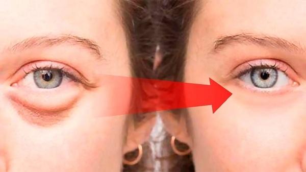 Bọng mắt có thể được hình thành do nhiều nguyên nhân