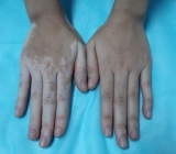 Màu da chân tay bất ngờ biến sắc sau khi ngâm lá trầu không