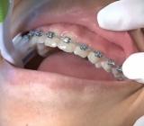 6 mẹo chăm sóc răng niềng cho trẻ nhỏ