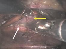 Cắt hạch thần kinh giao cảm lưng trị mồ hôi chân có những tiến bộ mới