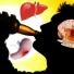 6 nguyên nhân chính gây ra bệnh hô hấp