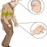 Những biểu hiện của chứng bệnh Parkinson và cách điều trị