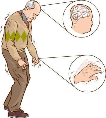 Bệnh Parkinson gây ra nhiều triệu chứng ảnh hưởng nghiêm trọng đến cuộc sống của người bệnh