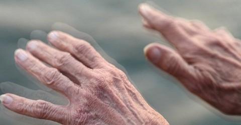 Những bệnh lý về hệ thần kinh thường có dấu hiệu báo trước