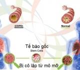 Tế bào gốc trong điều trị COPD
