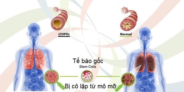 Một liệu pháp tiên phong sử dụng tế bào gốc tủy xương để điều trị cho bệnh nhân ung thư phổi đã được công bố tại Anh.