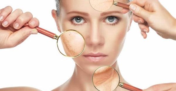 Những kiến thức cần thiết về bệnh nám da của phụ nữ