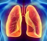 Tắc nghẽn phổi mãn tính COPD liên quan tới tế bào gốc bất thường