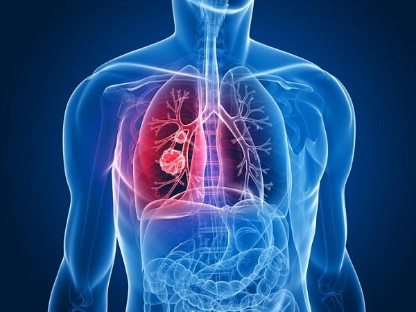 Liệu pháp tế bào gốc cho bệnh ung thư phổi bắt đầu thử nghiệm trên người