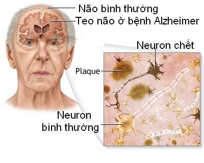 Bệnh nhân Alzheimer