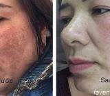 Chăm sóc làm đẹp da, trị nám da cùng công nghệ tăng sinh tế bào gốc Olimpiq