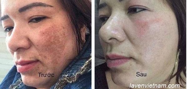 Hình ảnh trước và sau khi sử dụng 1 hộp Olimpiq hỗ trợ tăng sinh tế bào gốc nội sinh