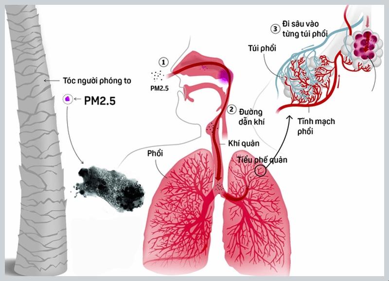 Hình ảnh bụi PM 2.5 xâm nhập vào hệ hô hấp